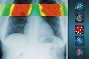 X光机透视人体